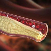 Armolipid Plus Colesterol